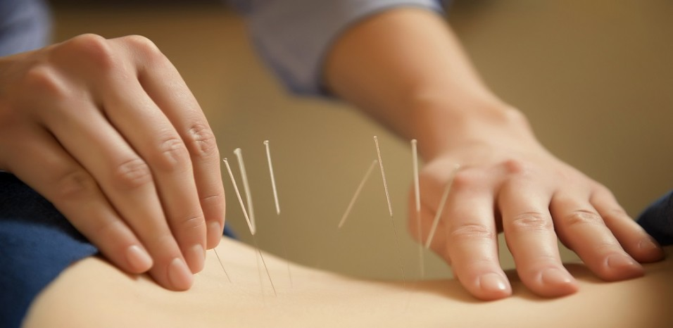 Indicatii si contraindicatii in acupunctura